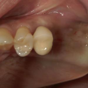インプラント症例奥歯0