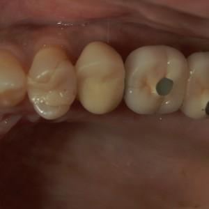 インプラント症例奥歯2