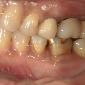 インプラント症例奥歯4